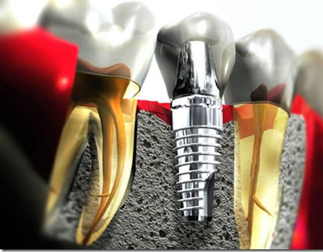 Implantes Odontológicos que Substituem os Dentes Perdidos