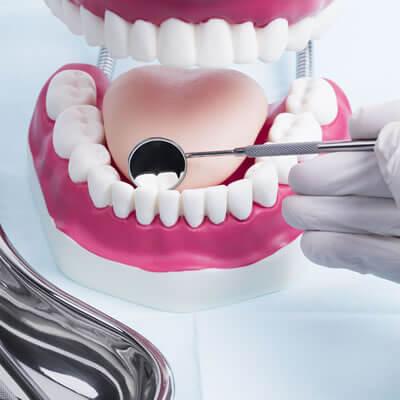 Implante Odontológico e Reabilitação Oral